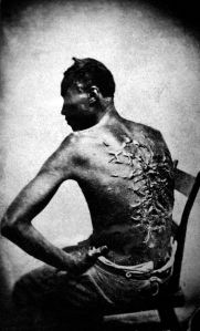 Peter or Gordon, a whipped slave, photo taken at Baton Rouge, Louisiana, 1863;